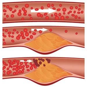 Atherosclerosis1